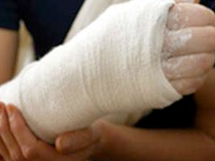 Caring for a Broken Arm